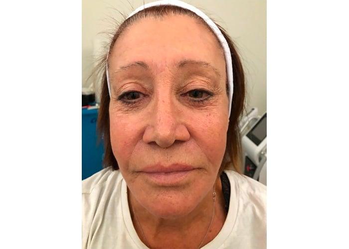 Résultat-après-soin-du-visage-cryoface